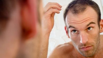 caída-cabello-tratamiento-células-madre